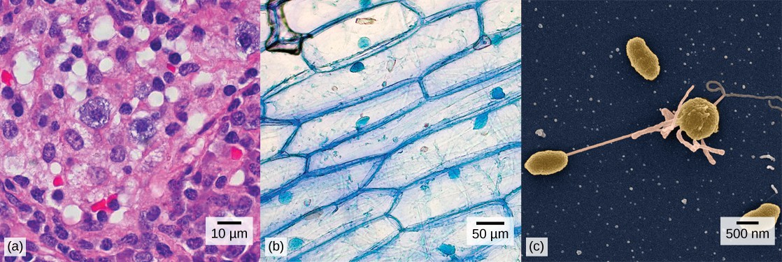 Left: Human nasal sinus cells as viewed by light microscopy have an irregular round shape and a well-defined nucleus that takes up about one-half of the cell. Middle: Onion skin cells, also viewed by light microscopy, are long and thin with a rectangular shape defined by a cell wall. They are about as wide as a nasal sinus cell, but at least five times as long. The cell wall and nucleus are well defined in the micrograph. The onion skin nucleus is about the same size as the nasal sinus cell nucleus. Right: In this scanning electron micrograph of bacterial cells, the cell surface has a three-dimensional shape. Three of the bacteria are oval in shape. The fourth is round and has protrusions called pili. One pilus connects this bacterium to another.