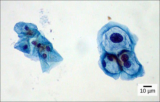 Both normal cells and cells infected with HPV have an irregular, round shape and a well-defined nucleus. The infected cells, however, are two to three times as large as uninfected cells, and some have two nuclei.