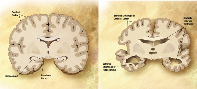 This image shows an image of a healthy brain and an image of a brain with Alzheimer's. In the brain with Alzheimer's, the hippocampus and cerebral cortex have shrunk, and the ventricles are severely enlarged.