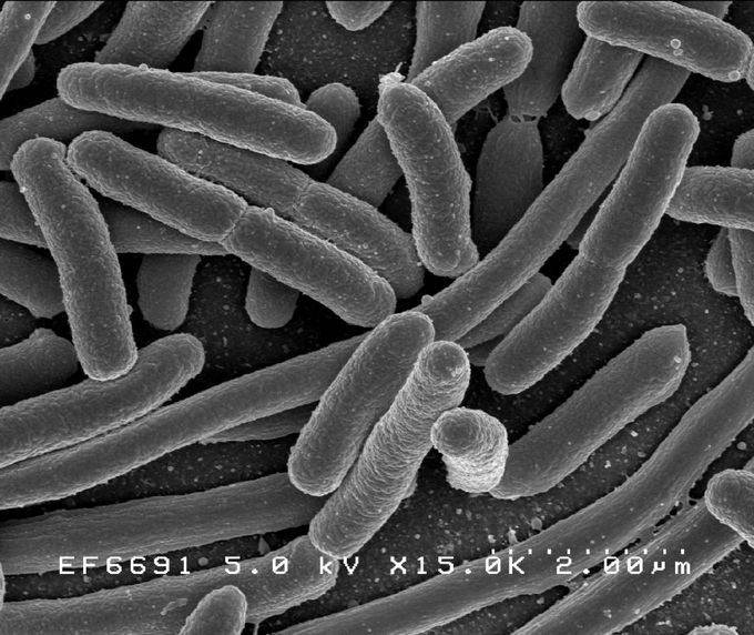This is a photograph of Escherichia coli, one of the many species of bacteria present in the human gut.