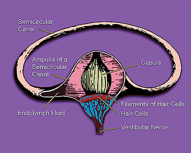 This is an illustration of the inner ear that shows its semicircular canal, hair cells, ampulla, cupula, vestibular nerve, and fluid.