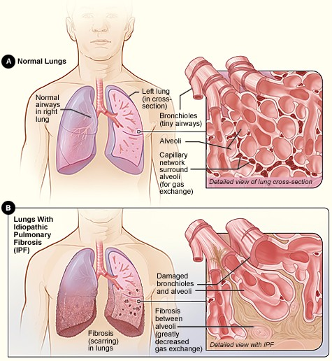 Factors Affecting Pulmonary Ventilation | Boundless Anatomy and ...