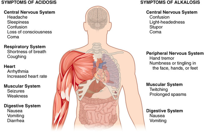 This is a cutaway view showing the symptoms of acidosis and alkalosis on various body systems. The systems affected by acidosis are: the central nervous system, with symptoms of headache, sleepiness, confusion, loss of consciousness, and coma. Respiratory system symptoms include shortness of breath and coughing. Heart symptoms include arrhythmia and increased heart rate. Muscular system symptoms include seizures and weakness. Digestive system symptoms are nausea, vomiting, or diarrhea. The systems affected by alkalosis are: the central nervous system, with symptoms of confusion, light-headedness, stupor, and coma. Peripheral nervous system symptoms include hand tremor and numbness or tingling in the face, hands, or feet. Muscular system symptoms include twitching and prolonged spasms. Digestive system symptoms are nausea and vomiting.