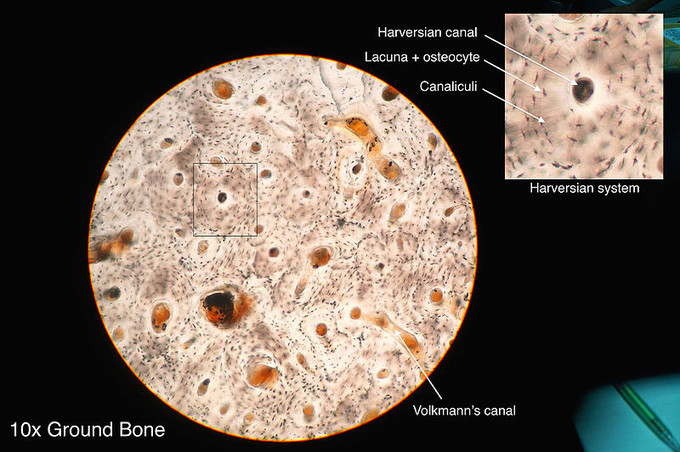 This is a photo taken through a microscope that shows the anatomy of compact bone with a detailed view of an osteon. The Haversian system is called out in the osteon: The Haversian canal, lacuna and osteocype, and the canaliculi are identified.