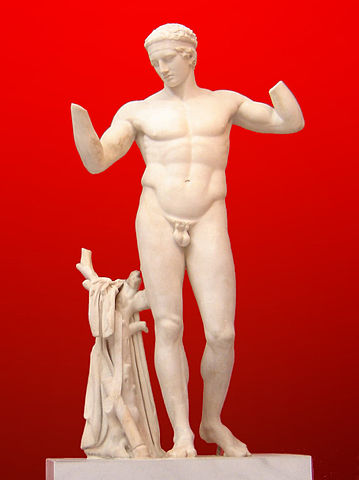 This is a photo of the statue Diadoumenos Atenas (a Roman copy), a nude free-standing male. His arms are up, bent at the elbow and he stands next to a tree trunk, which is connected to his leg.