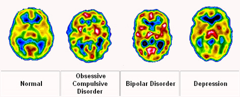 behavioral and physiological effects of adhd The symptoms of adhd — inattention, hyperactivity or impulsive behavior — often show up first at school a teacher may report to since such risks vary widely depending on the individual, it is important to discuss the potential benefits and risks of each treatment with your doctor another potential.