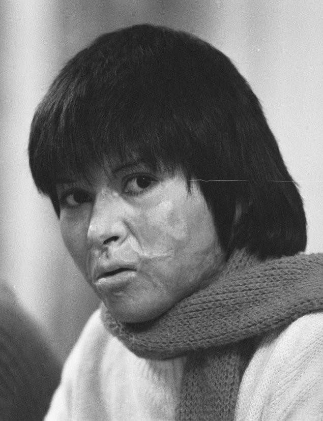 Photograph of Carmen Gloria Quintana showing burn scars all over her face